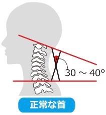 正常な首の角度